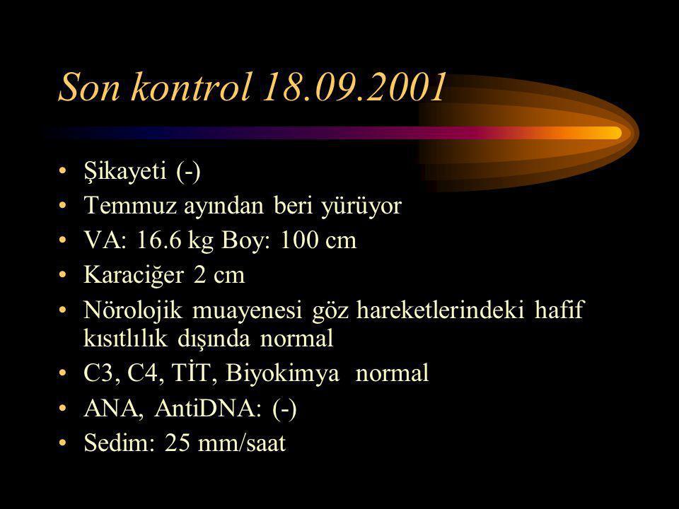 Son kontrol 18.09.2001 Şikayeti (-) Temmuz ayından beri yürüyor