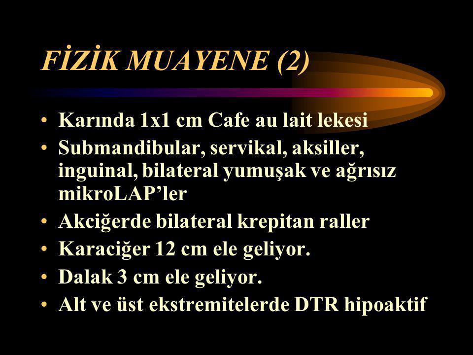 FİZİK MUAYENE (2) Karında 1x1 cm Cafe au lait lekesi
