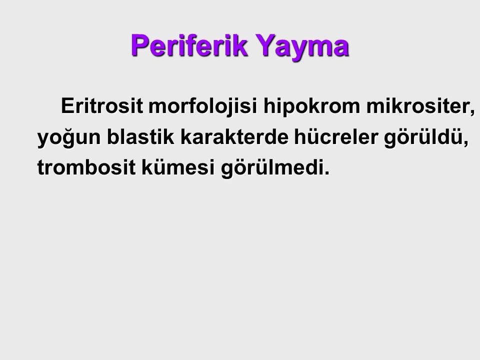 Periferik Yayma Eritrosit morfolojisi hipokrom mikrositer, yoğun blastik karakterde hücreler görüldü, trombosit kümesi görülmedi.