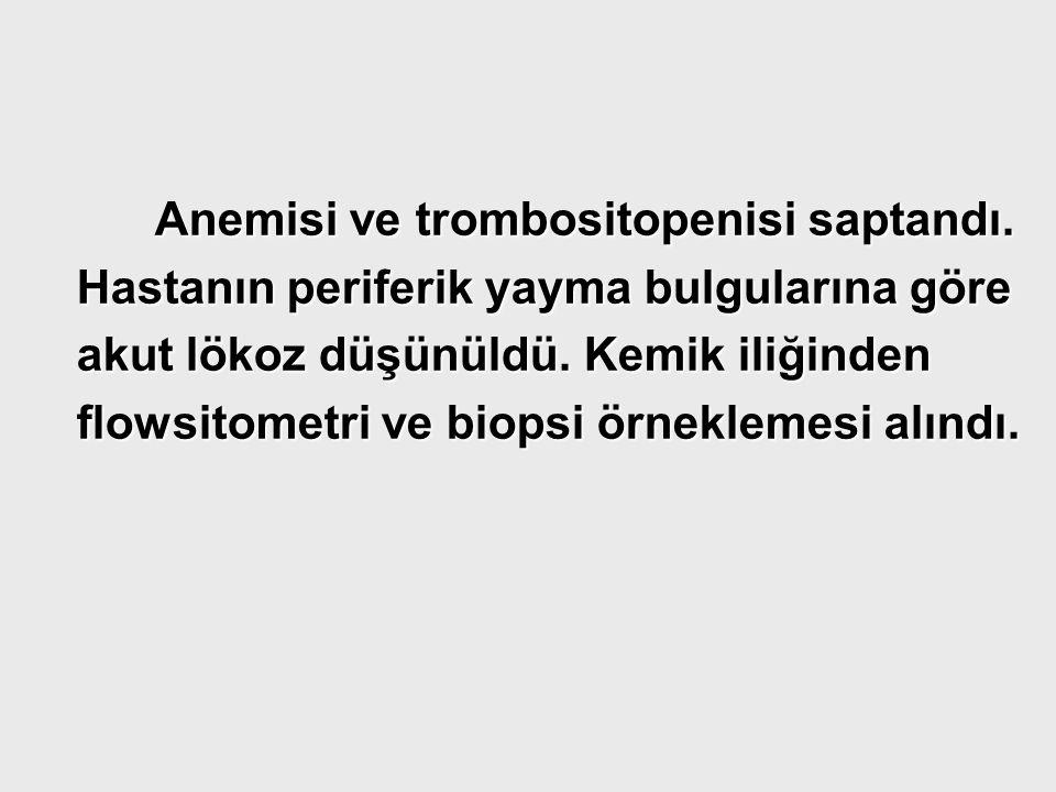 Anemisi ve trombositopenisi saptandı