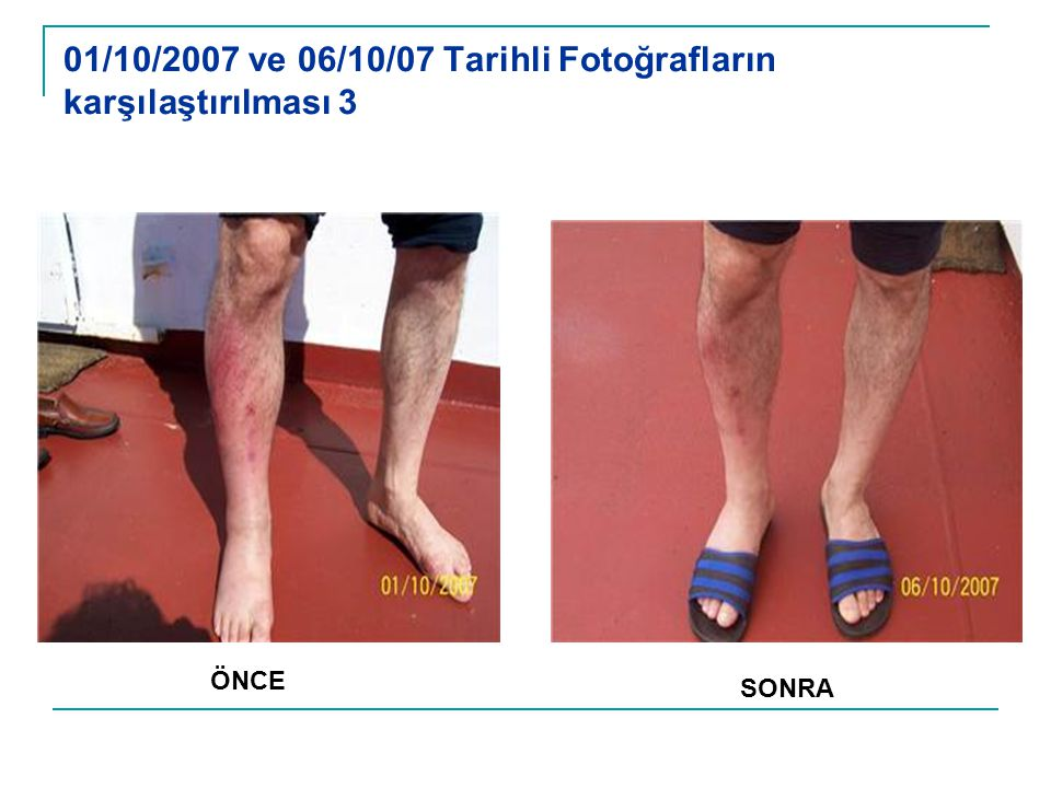 01/10/2007 ve 06/10/07 Tarihli Fotoğrafların karşılaştırılması 3