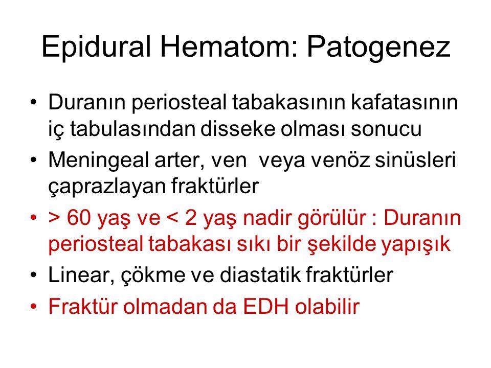Epidural Hematom: Patogenez