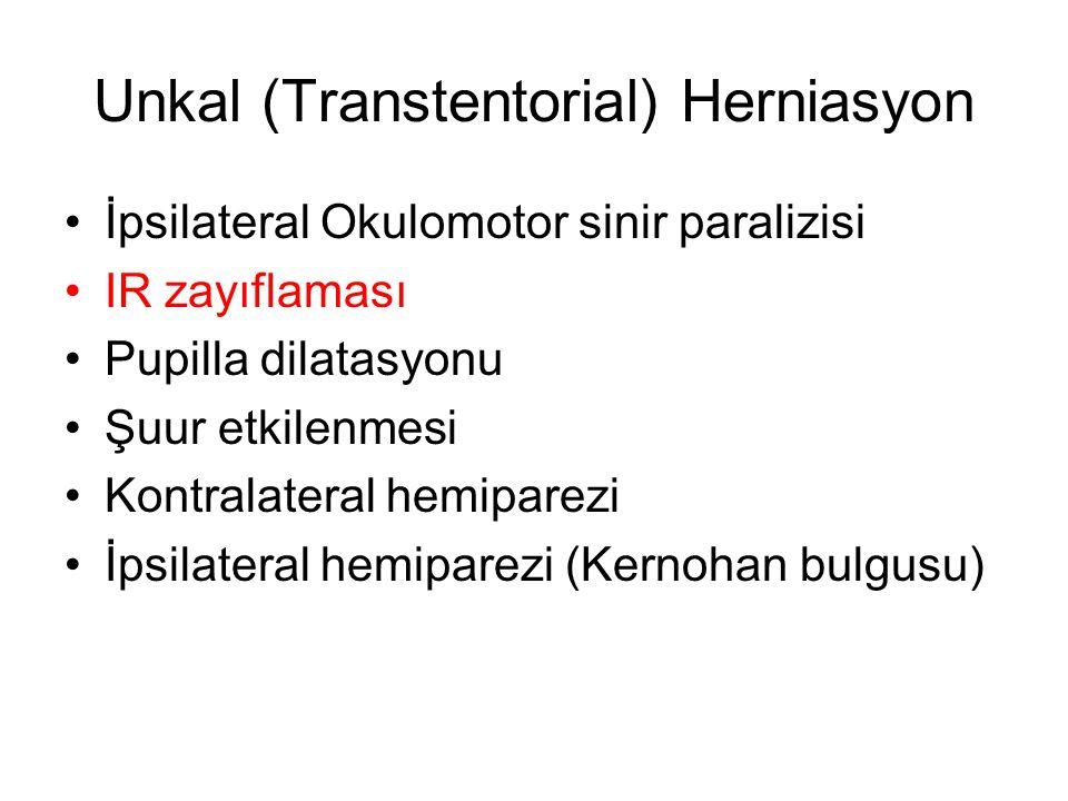 Unkal (Transtentorial) Herniasyon