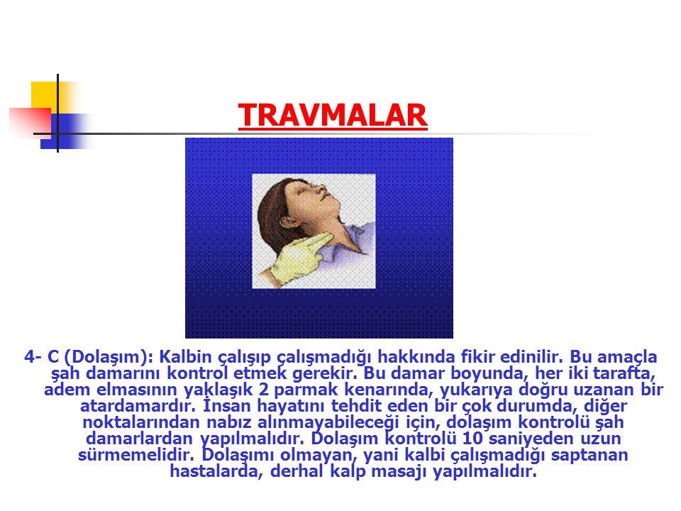 TRAVMALAR