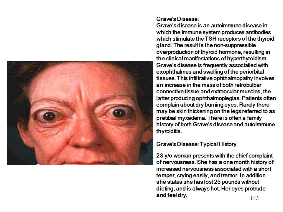 Grave s Disease:
