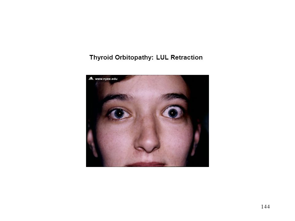 Thyroid Orbitopathy: LUL Retraction
