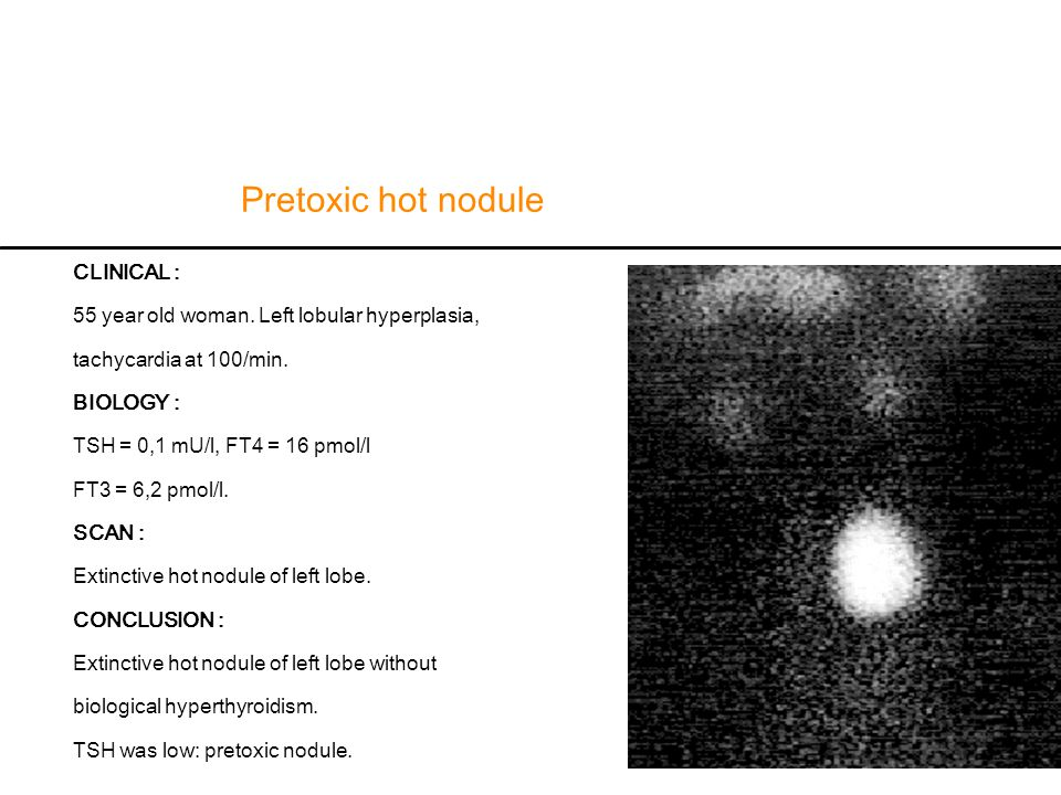 Pretoxic hot nodule CLINICAL :