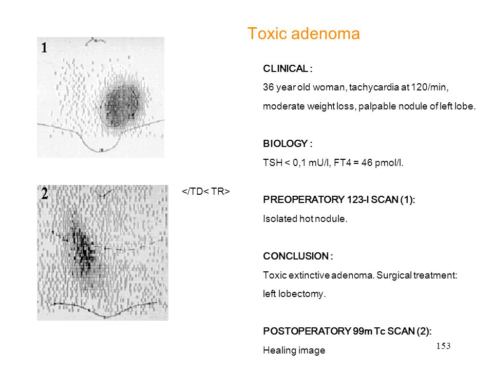 Toxic adenoma CLINICAL : 36 year old woman, tachycardia at 120/min,