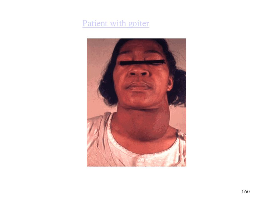 Patient with goiter