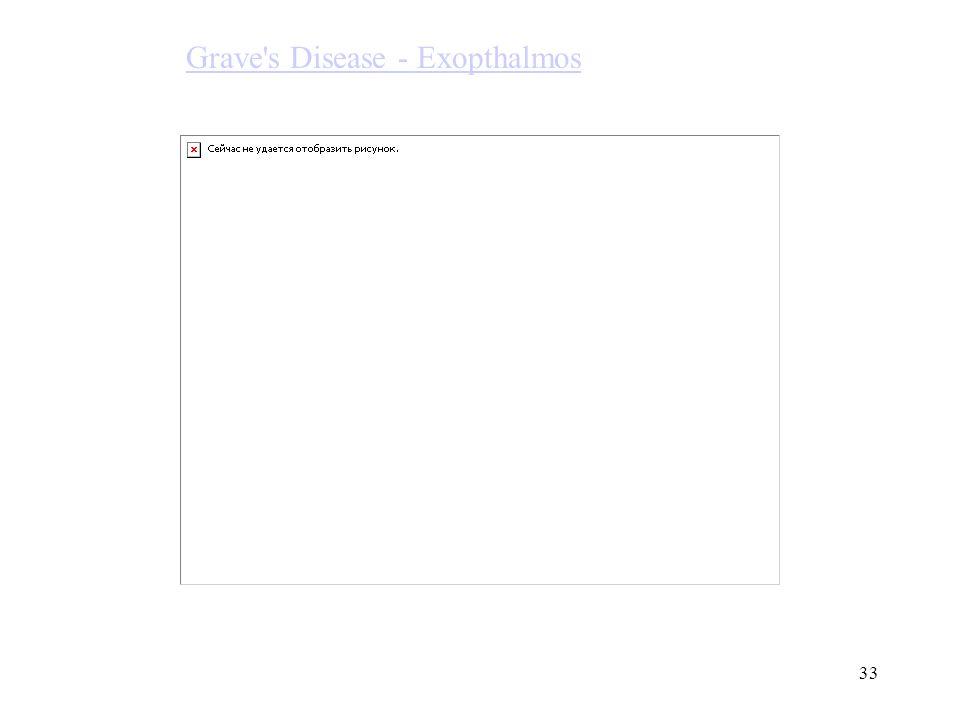 Grave s Disease - Exopthalmos