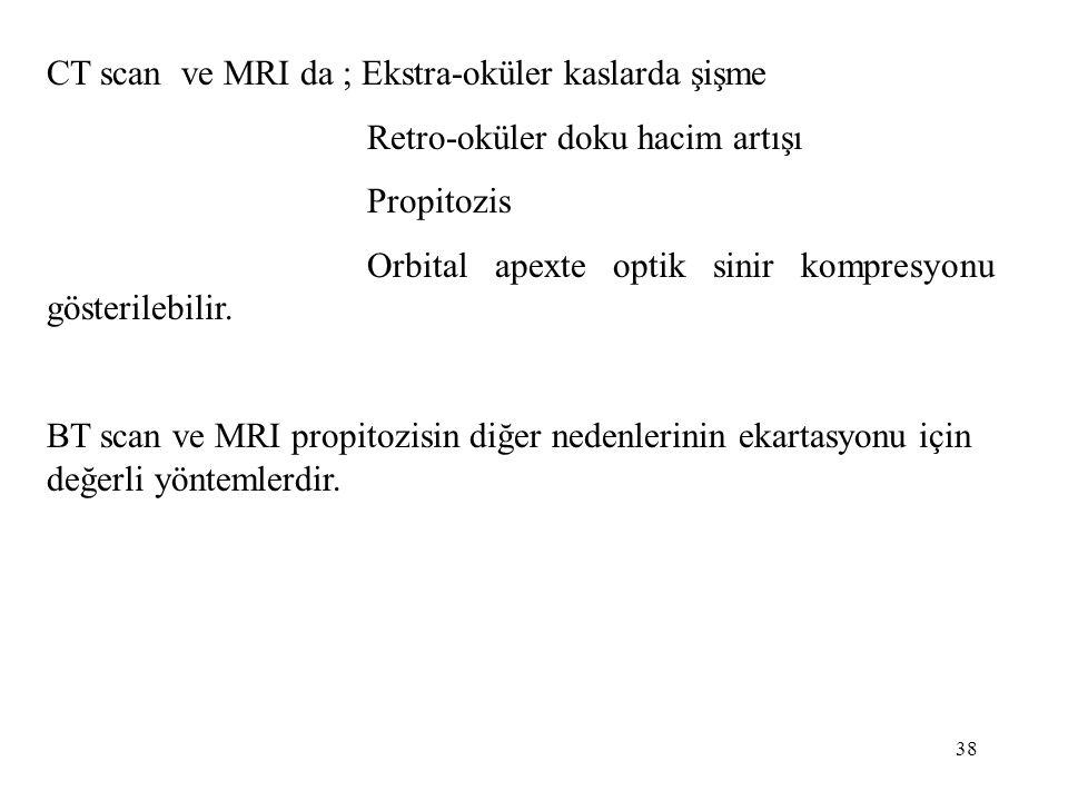 CT scan ve MRI da ; Ekstra-oküler kaslarda şişme