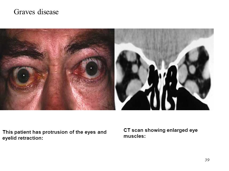 Graves disease CT scan showing enlarged eye muscles: