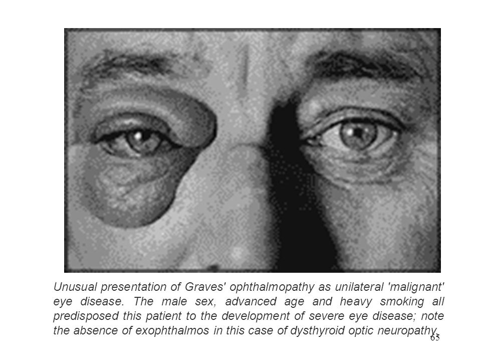 Unusual presentation of Graves ophthalmopathy as unilateral malignant eye disease.