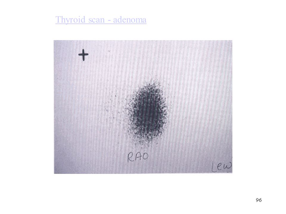 Thyroid scan - adenoma