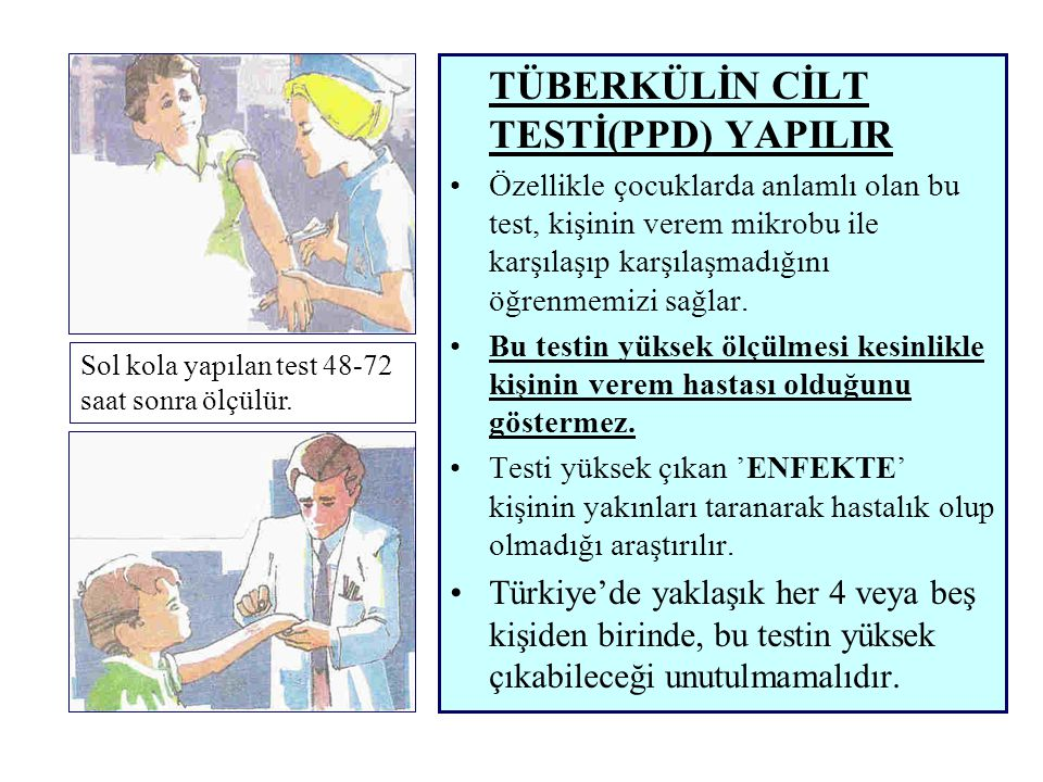 TÜBERKÜLİN CİLT TESTİ(PPD) YAPILIR