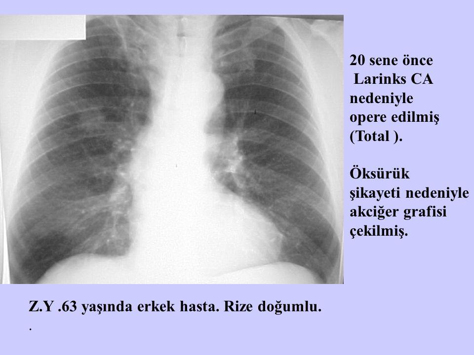 20 sene önce Larinks CA. nedeniyle. opere edilmiş. (Total ). Öksürük. şikayeti nedeniyle. akciğer grafisi.