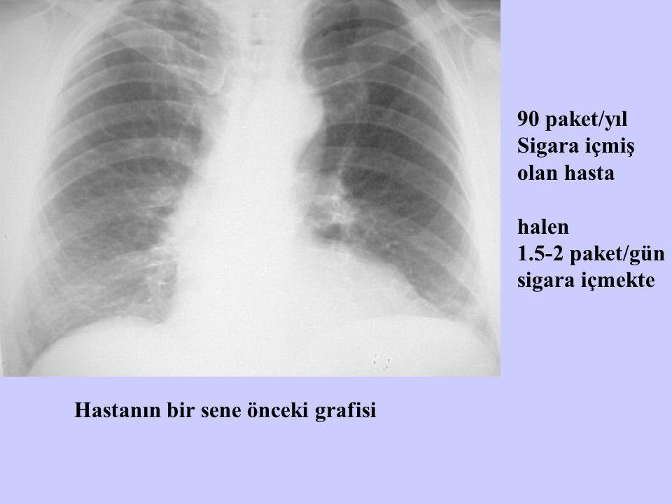 90 paket/yıl Sigara içmiş. olan hasta. halen. 1.5-2 paket/gün.
