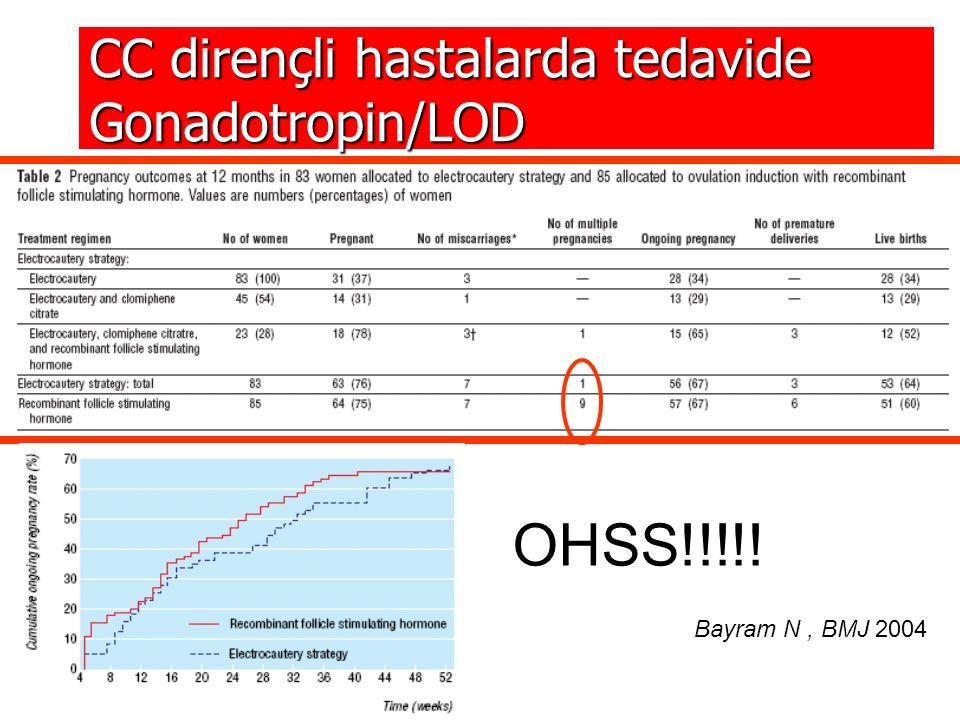 OHSS!!!!! CC dirençli hastalarda tedavide Gonadotropin/LOD