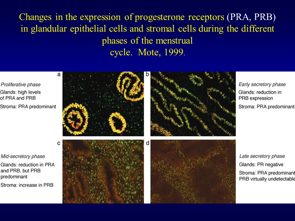 Changes in the expression of progesterone receptors (PRA, PRB) in glandular epithelial cells and stromal cells during the different phases of the menstrual cycle.