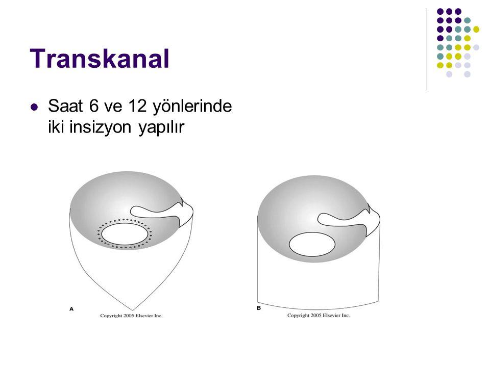 Transkanal Saat 6 ve 12 yönlerinde iki insizyon yapılır