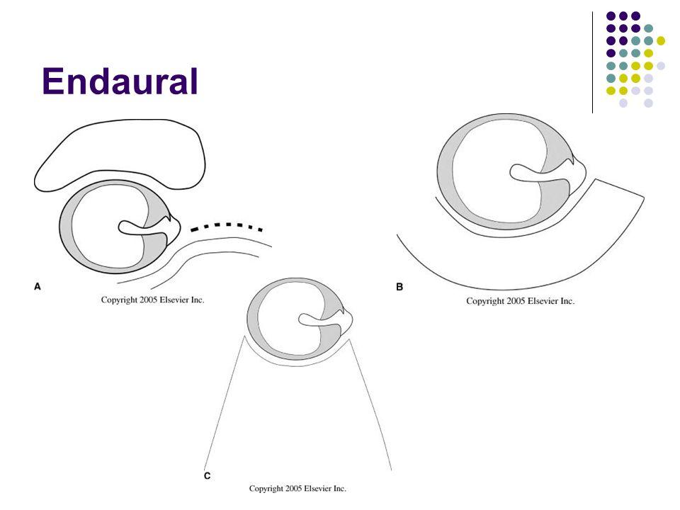 Endaural