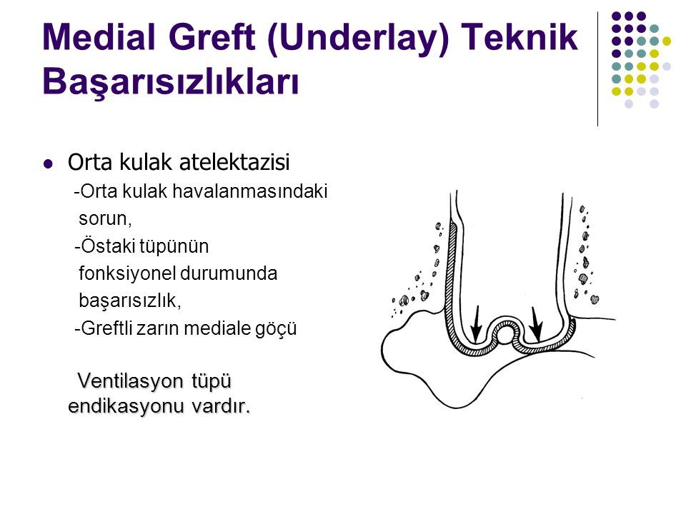 Medial Greft (Underlay) Teknik Başarısızlıkları