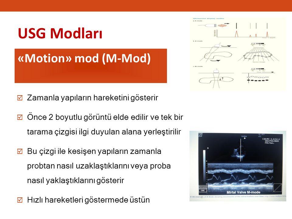 USG Modları «Motion» mod (M-Mod) 1111