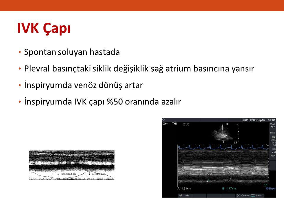 IVK Çapı 2222 Spontan soluyan hastada