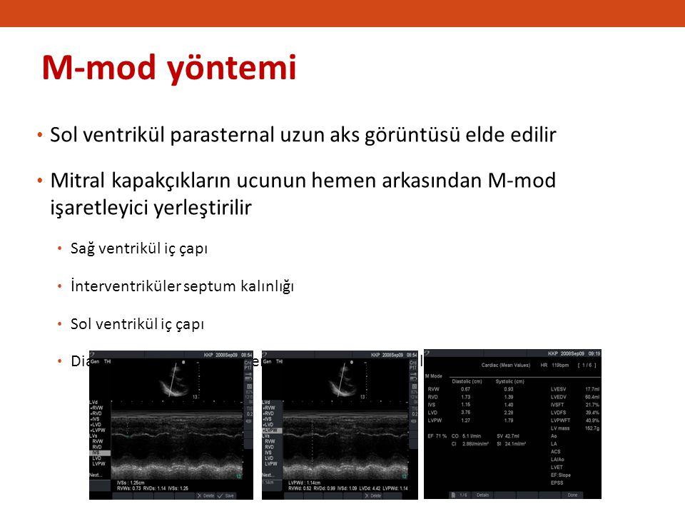 2828 IVS kalınlığı. M-mod yöntemi. Sol ventrikül parasternal uzun aks görüntüsü elde edilir.