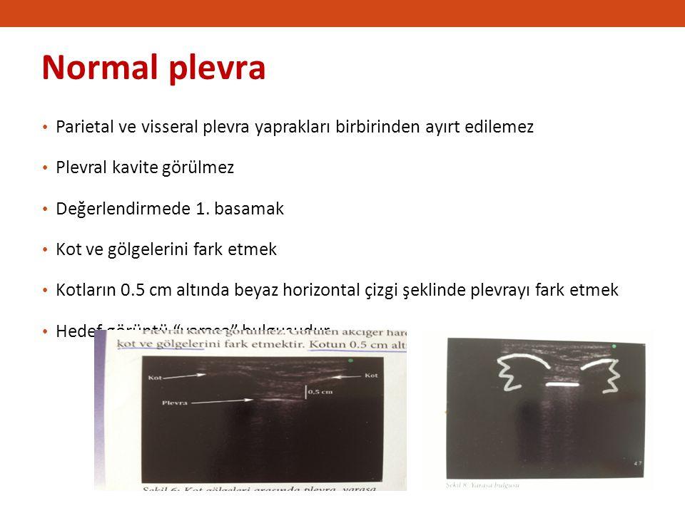 Normal plevra Parietal ve visseral plevra yaprakları birbirinden ayırt edilemez. Plevral kavite görülmez.
