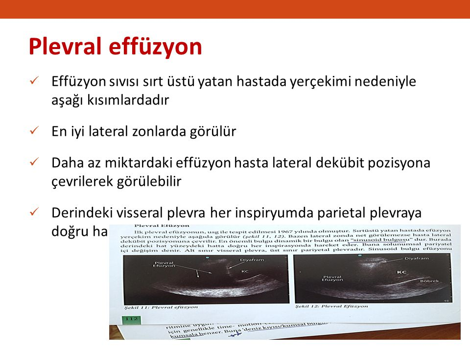 Plevral effüzyon Effüzyon sıvısı sırt üstü yatan hastada yerçekimi nedeniyle aşağı kısımlardadır.