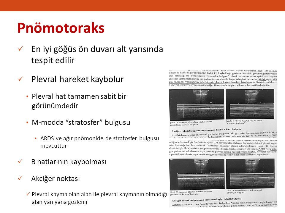 Pnömotoraks En iyi göğüs ön duvarı alt yarısında tespit edilir