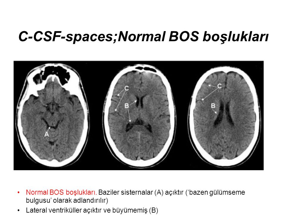 C-CSF-spaces;Normal BOS boşlukları