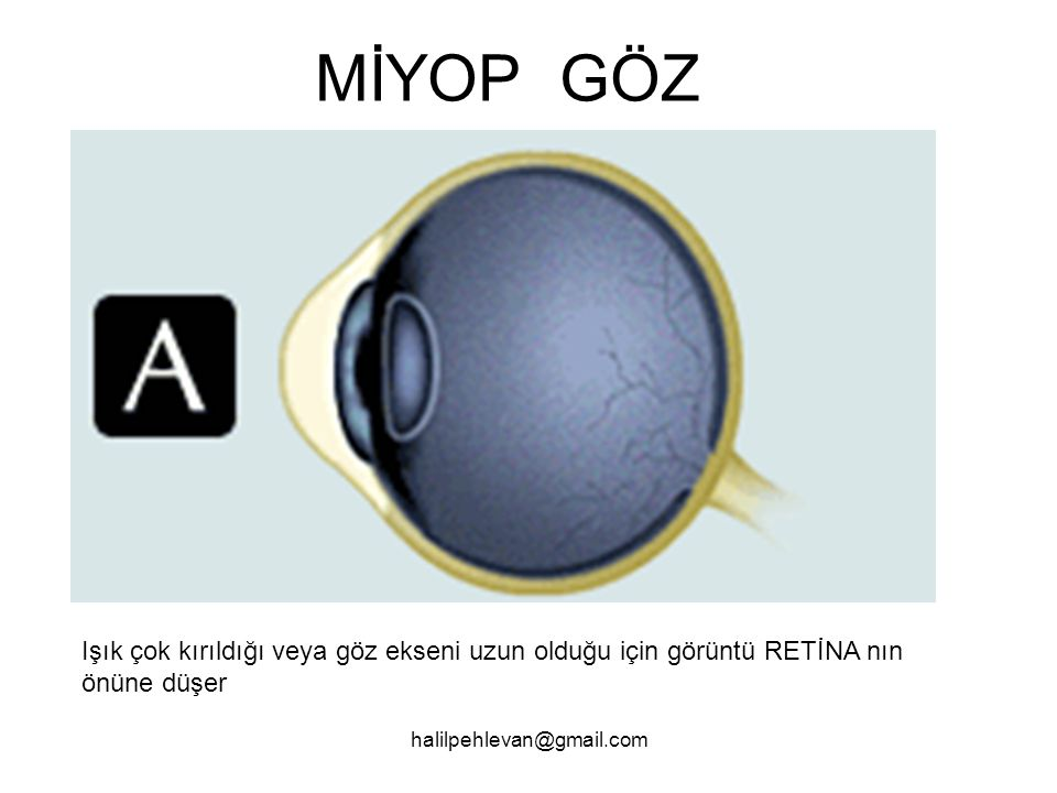 MİYOP GÖZ Işık çok kırıldığı veya göz ekseni uzun olduğu için görüntü RETİNA nın önüne düşer.