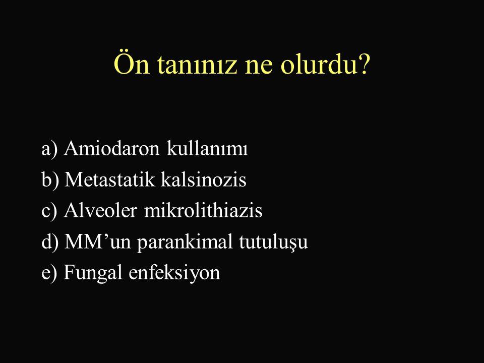 Ön tanınız ne olurdu a) Amiodaron kullanımı b) Metastatik kalsinozis