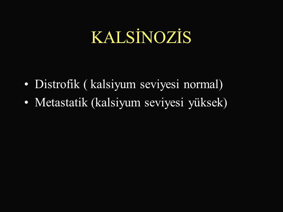 KALSİNOZİS Distrofik ( kalsiyum seviyesi normal)