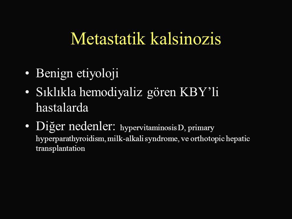 Metastatik kalsinozis