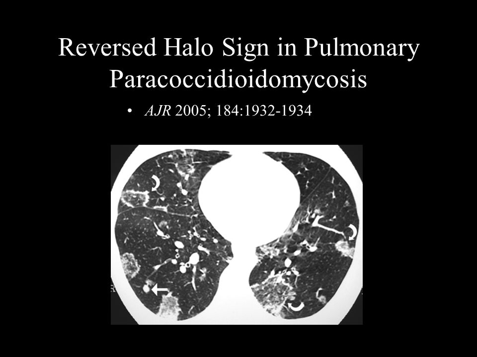 Reversed Halo Sign in Pulmonary Paracoccidioidomycosis