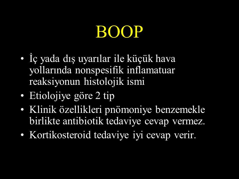 BOOP İç yada dış uyarılar ile küçük hava yollarında nonspesifik inflamatuar reaksiyonun histolojik ismi.