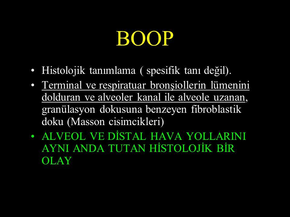 BOOP Histolojik tanımlama ( spesifik tanı değil).