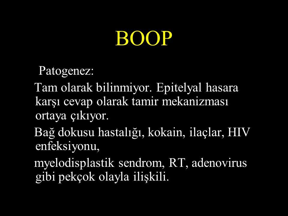 BOOP Patogenez: Tam olarak bilinmiyor. Epitelyal hasara karşı cevap olarak tamir mekanizması ortaya çıkıyor.