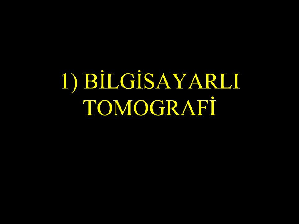 1) BİLGİSAYARLI TOMOGRAFİ