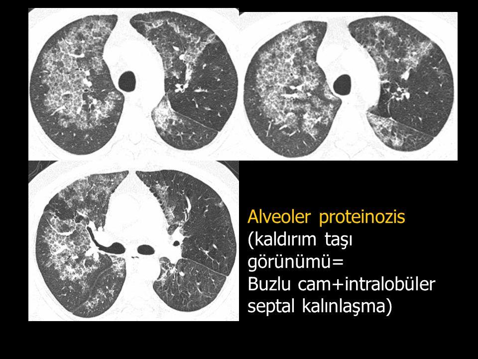 Alveoler proteinozis (kaldırım taşı görünümü= Buzlu cam+intralobüler septal kalınlaşma)