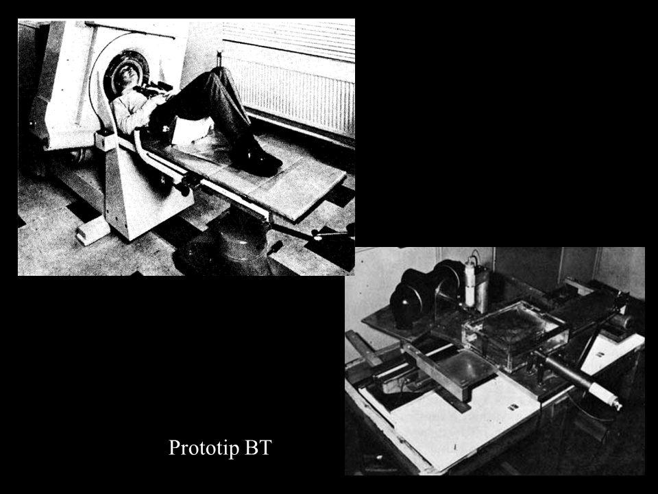 Londrada Atkinson morley's hastanesinde kullanılan ilk klinik prototip beyin BT cihazı
