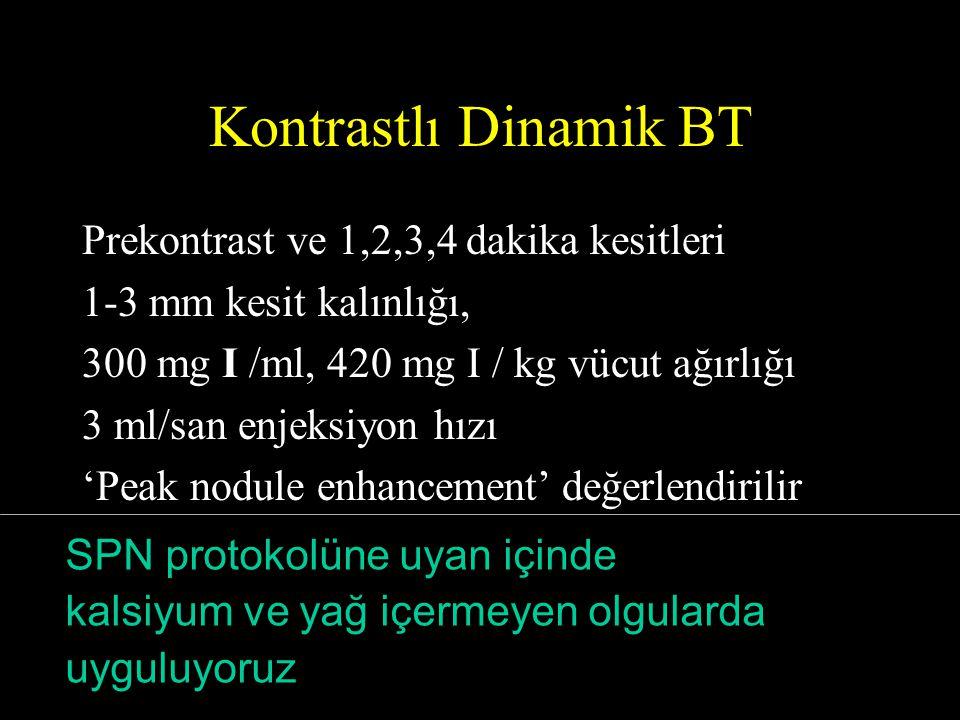 Kontrastlı Dinamik BT Prekontrast ve 1,2,3,4 dakika kesitleri