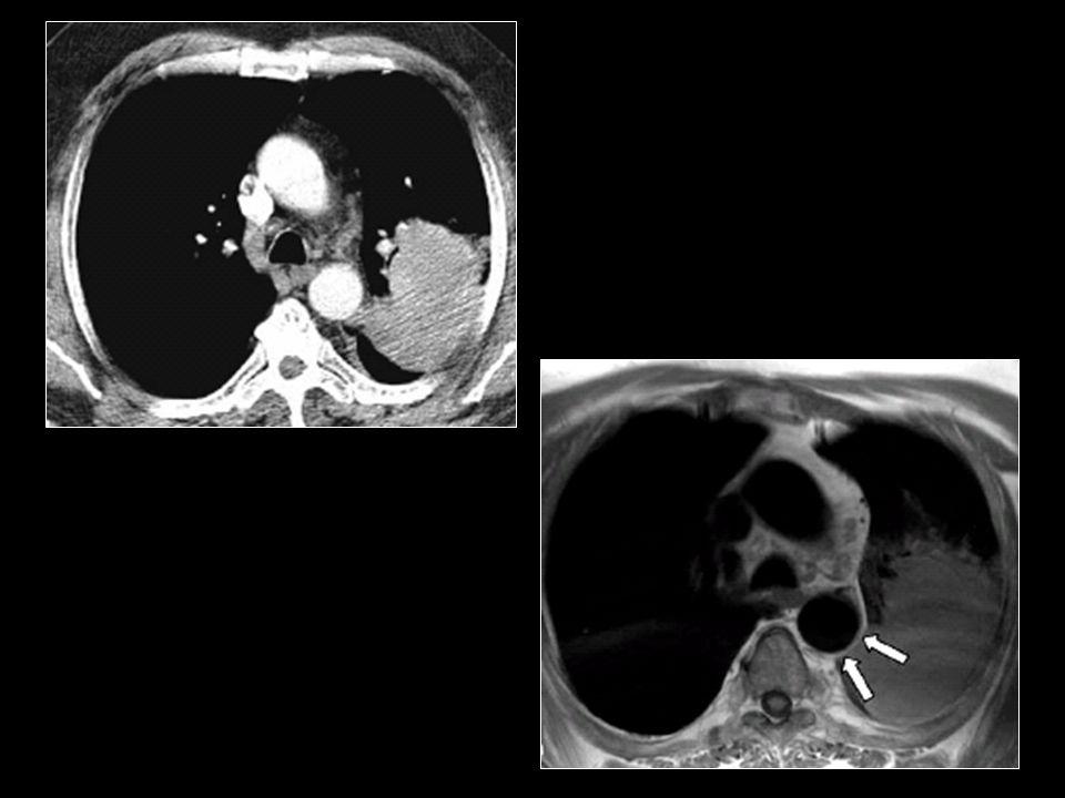 BT'de aortaya invazyon yönünden yağ lkivajı net izlenmez iken MRG'de net olarak yağ planı seçilebiliyor.