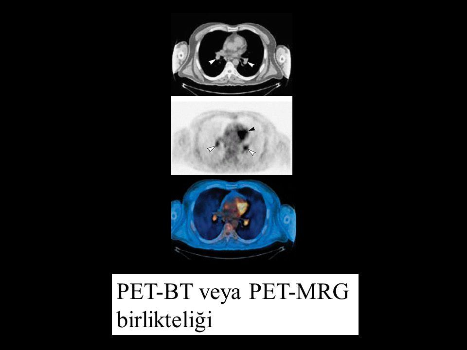 PET-BT veya PET-MRG birlikteliği