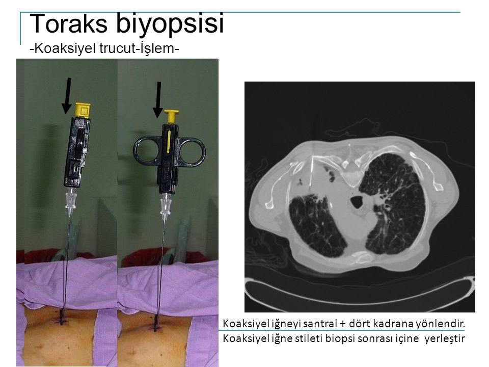 Toraks biyopsisi -Koaksiyel trucut-İşlem-