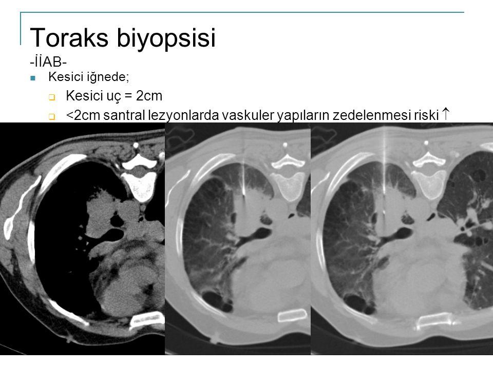Toraks biyopsisi -İİAB-