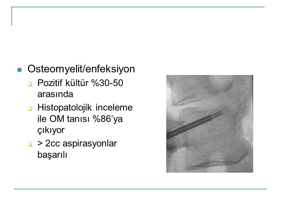 Osteomyelit/enfeksiyon